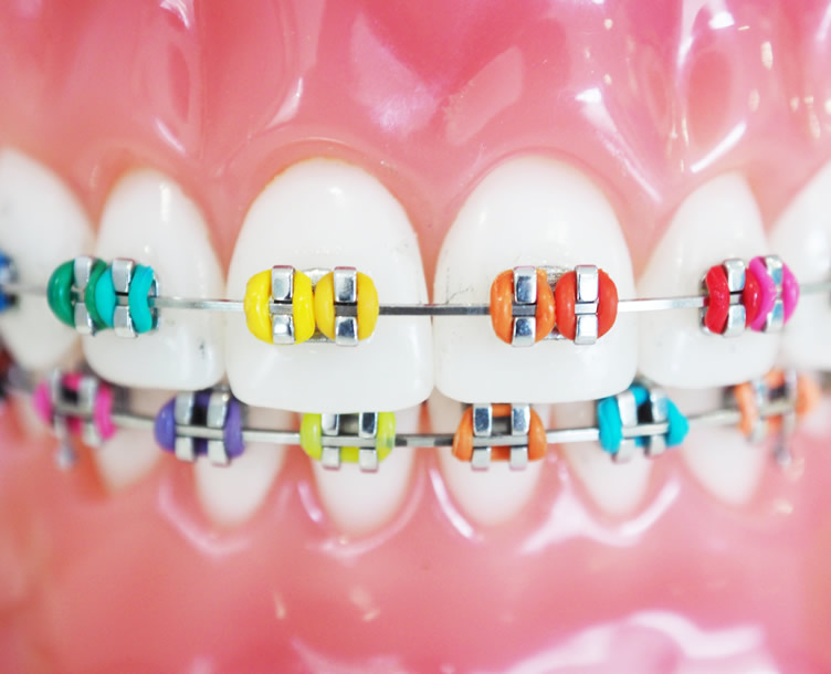 Coloured Metal Braces