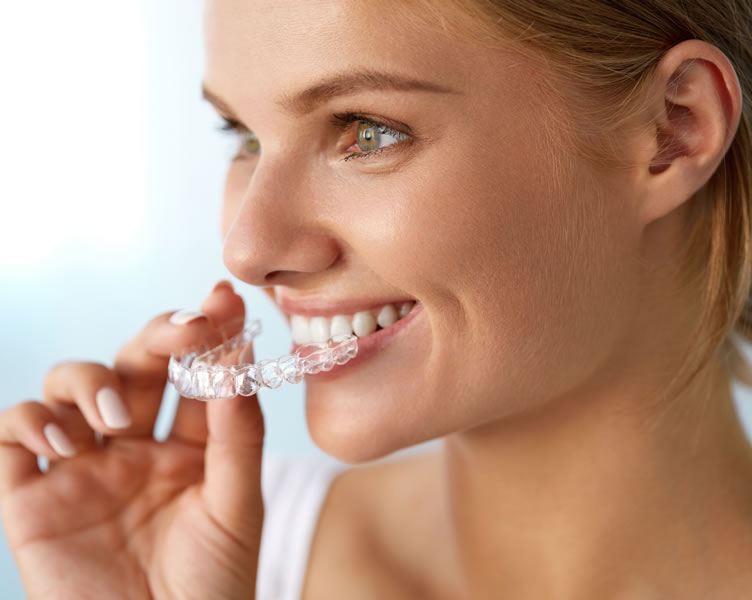Invisalign® Clear Aligners Limerick